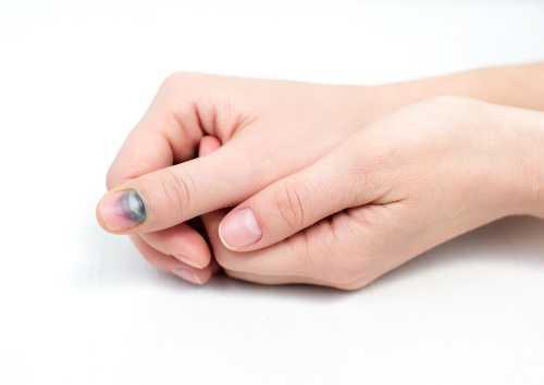 Что делать при ушибе ногтя, что поможет и что