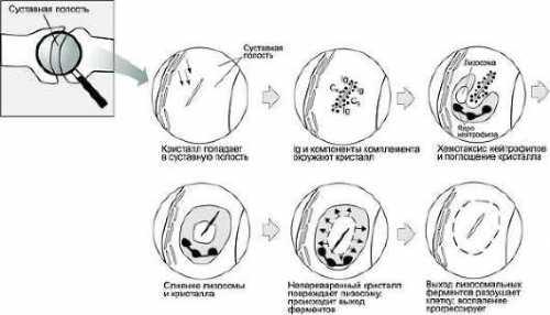 Эпиляция зоны бикини повышает риск заразных