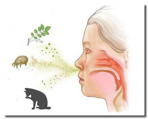 Если аллергический процесс пустить на самотек, оставить его без контроля, а многие обычно так и делают, может возникнуть уже более серьёзное осложнение бронхиальная астма