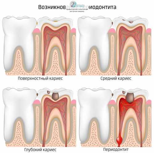 Это вероятно при недугах зубов и тканей пародонта